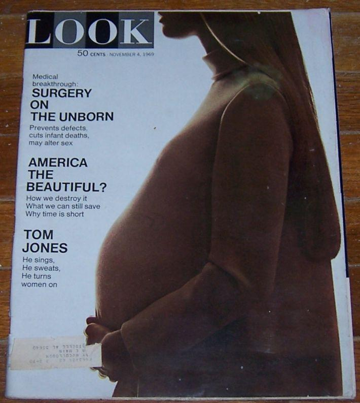 Look Magazine November 4, 1969 Surgery on the Unborn on cover/Tom Jones